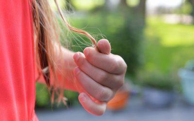 Alopecia – ved du, hvad det er?